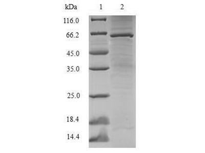 Recombinant Human Lupus La protein(SSB)