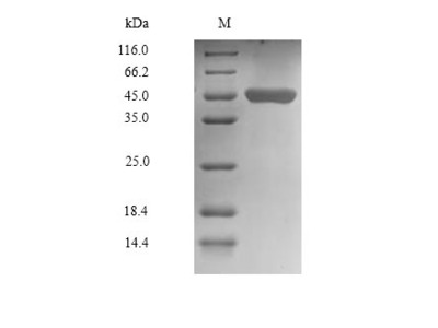 Recombinant Human Chitinase domain-containing protein 1(CHID1) (Mammalian cell)