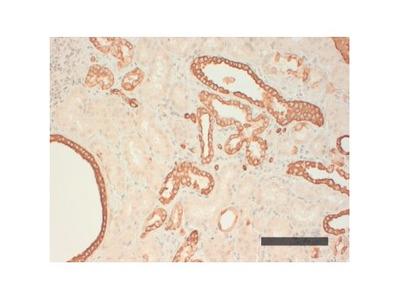 Anti-Cytokeratin AE1 Antibody (CK 210 (AE1))