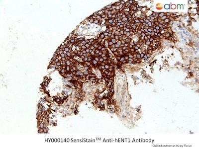 SensiStain Anti-hENT1 Antibody