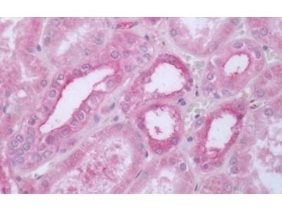 Anti-5-HT1D receptor antibody