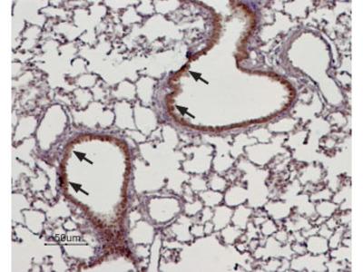 Anti-TRPM4 antibody