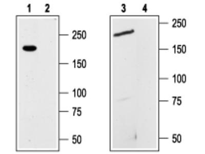 Anti-TRPM7 antibody