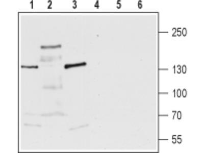Anti-TRPM3 antibody