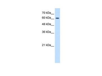 Anti-AChR epsilon antibody, N-term