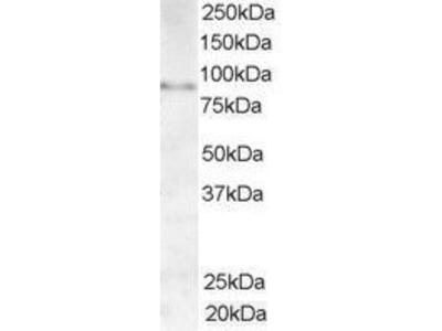 Anti-AKAP3 antibody, C-term