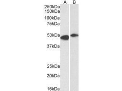 Anti-FBXL2 antibody, N-term