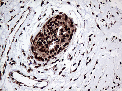 ZRANB2 / ZNF265 Monoclonal Antibody