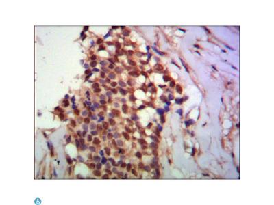 PPX Monoclonal Antibody