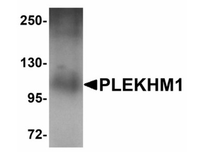 PLEKHM1 Polyclonal Antibody