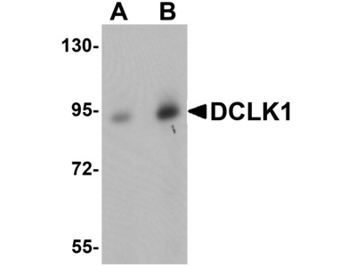 DCLK / DCLK1 Polyclonal Antibody