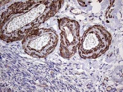 TYW2 / TRMT12 Monoclonal Antibody