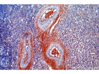 Tie2 Polyclonal Antibody