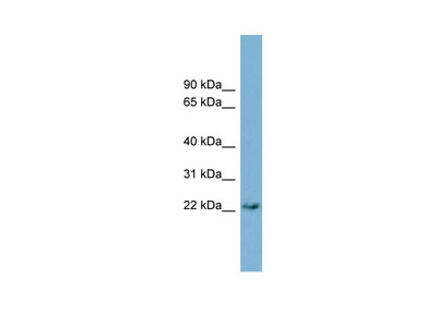 PERP antibody - middle region (ARP49688_P050)