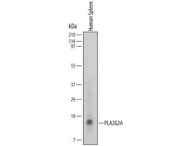 Human PLA2G2A Antibody