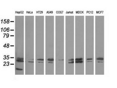 PECR Monoclonal Antibody