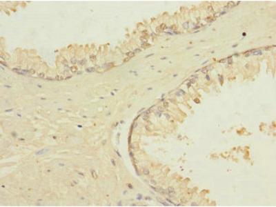TRPM4 Antibody