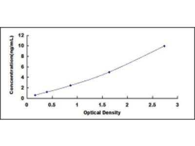 Human Glycosylphosphatidylinositol Anchored High Density Lipoprotein Binding Protein 1 (GPIHBP1) ELISA Kit