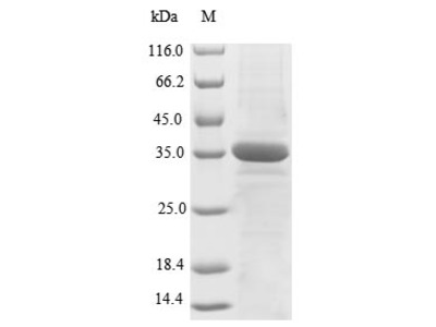 Recombinant Human X-Ray Repair Cross-Complementing Protein 5 (XRCC5), Partial