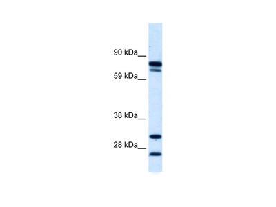 ZNF606 antibody - N-terminal region