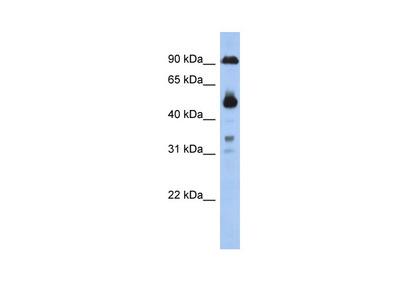 CCDC144B antibody - middle region