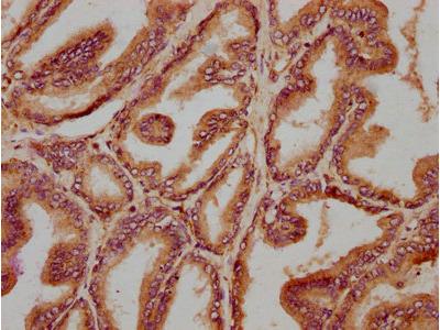 TMEM87B Antibody