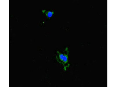 ALDH16A1 Antibody