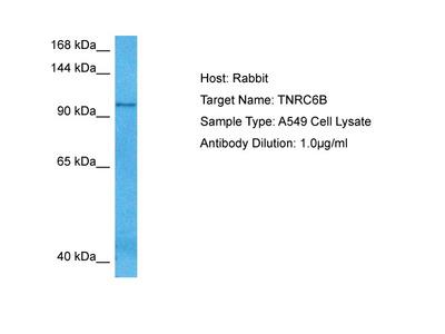 TNRC6B Antibody - middle region