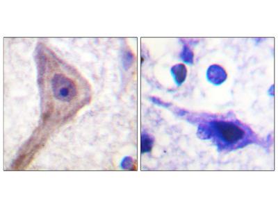Akt1 S1 Antibody