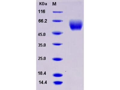 Recombinant Mouse SerpinA6 / CBG Protein (His tag)