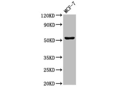 CHKA Antibody