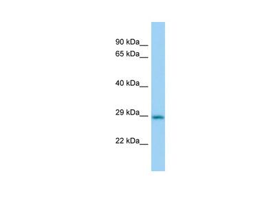 Cbr2 Antibody - N-terminal region