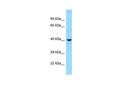 QTRT2 Antibody - C-terminal region