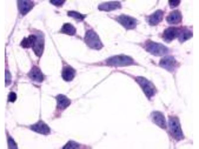 Anti-mGluR2 antibody