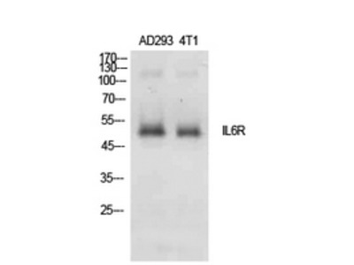 IL-6Ralpha Polyclonal Antibody