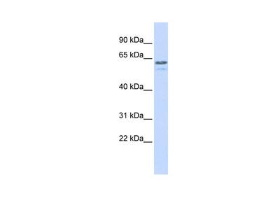 TRIM6 antibody - N-terminal region
