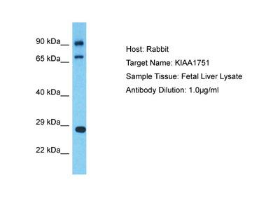 CFAP74 Antibody - C-terminal region