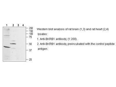 Anti-B1 Bradykinin Receptor Antibody