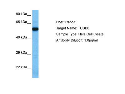 TUBB6 Antibody - C-terminal region