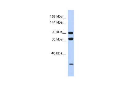 ARMC4 antibody - N-terminal region