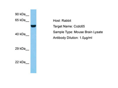 CCDC65 Antibody - middle region