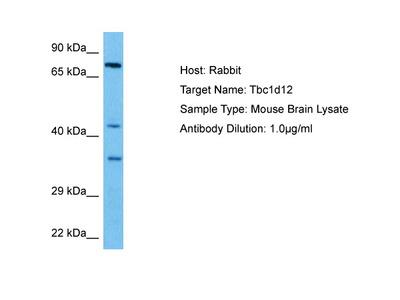TBC1D12 Antibody - middle region