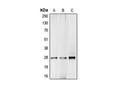 Complement C1R LC Antibody