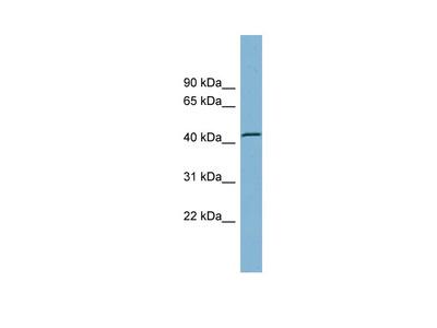 TBC1D13 antibody - middle region