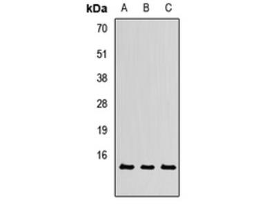 Anti-TXNL4A Antibody