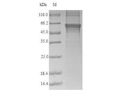 Recombinant Human Protein cereblon (CRBN)