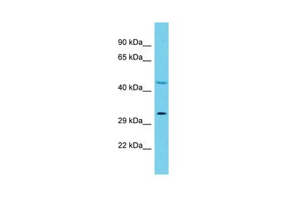 HAGHL Antibody - C-terminal region