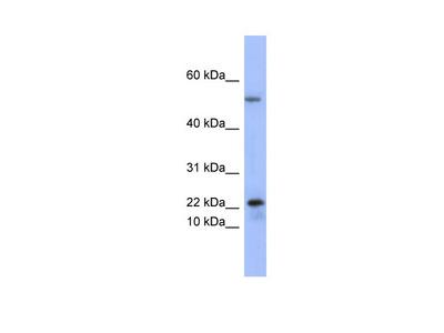 PLA2G5 antibody - middle region