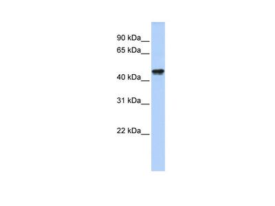 QTRT2 Antibody - N-terminal region