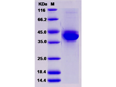 Recombinant Mouse S100A4 Protein (Fc tag)